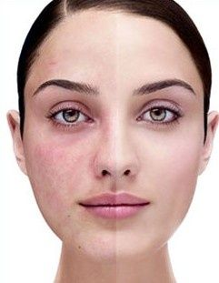 Utilize these tips to manage the signs of rosacea on your skin.