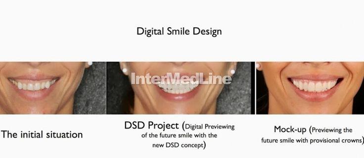Cosmetic dental treatment Romania on Your Medical Tourism ,Facilitator Abroad - The Best Medical Tourism Solutions For You!  http://www.intermedline.com/ http://www.intermedline.com/wp-content/blogs.dir/1/files/dental-treatment-abroad-dental-clinical-cases-romania/800x600_1387034813_dental_clinical_cases_-_digital_smile_design_3.jpg #dental #dentistry #dentaltourism #medicaltourism