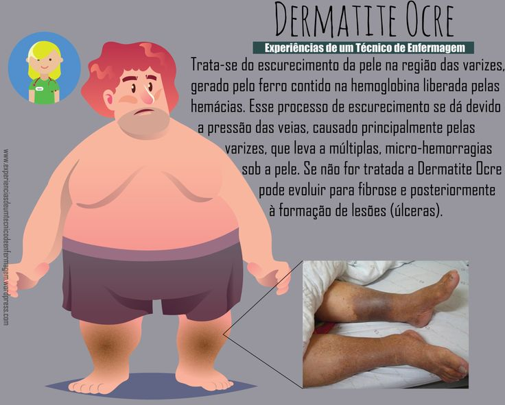 dermatiteocre.png