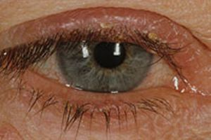 Ocular Rosacea: May include any of the following eye symptoms: watery, bloodshot, burning/stinging, itching, lid redness, stye, light sensitivity, blurred vision, foreign body sensation.    1. Flaxseed oil and omega 3s are quite effective.  2. Drink plenty of H2O.