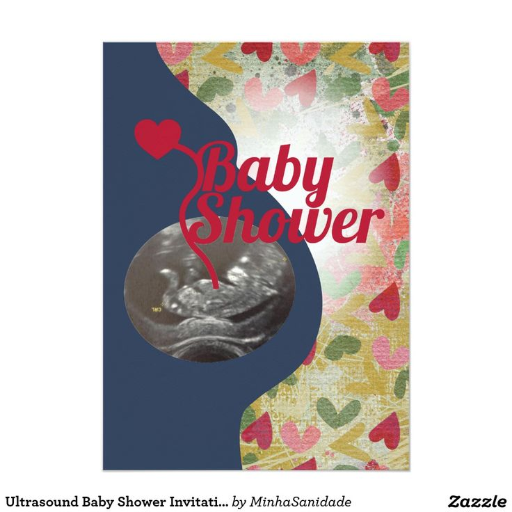 20 best Ultrasound Baby Shower Invitations images on Pinterest ...