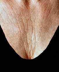 Why DO we get chest wrinkles?!