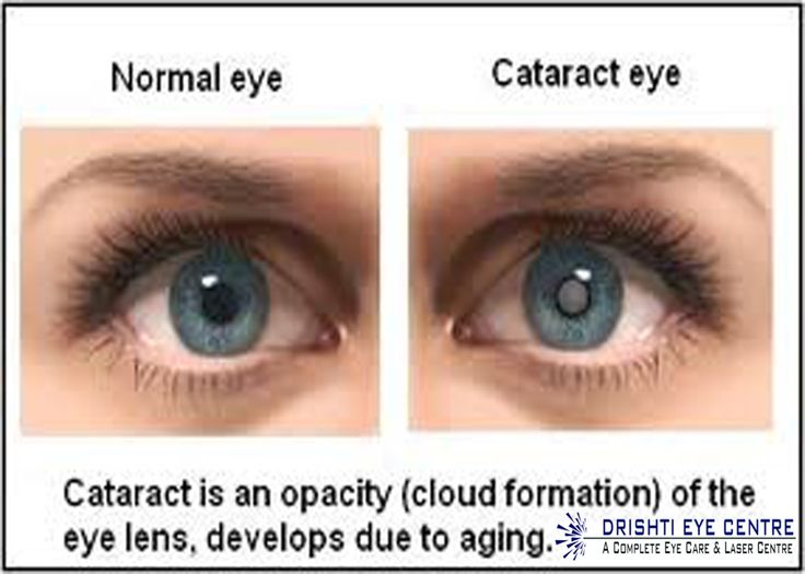 Cataract is a major cause of blindness in India.The condition is caused mainly due to ageing.Cataract surgery is a very safe and successful surgery.The technique employed most commonly these days is called phacoemulsification. Drishti Eye Centre would provide u best for their services.U can trust Drishti EYE Centre for cataract treatment & u will be completely satisfied with our services.For further details,contact-Amit Arora(+91-9911391592).