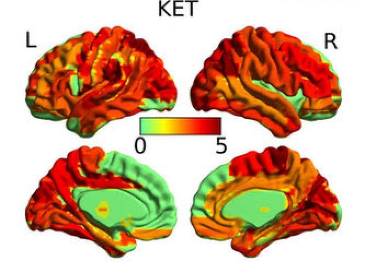 Le cerveau sous drogues psychédéliques