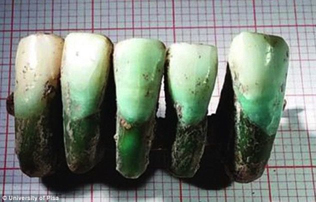 Archaeologists Find Earliest Dental Prosthesis In Medieval Tomb