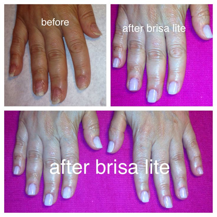 Gel or acrylic nails for nail biters