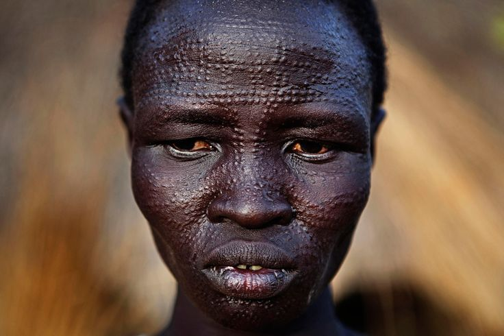 black skin   ... DESCENDANT from the PIKKY PIKKY HEAD, VERY DARK SKIN, BIG NOSE TYPES