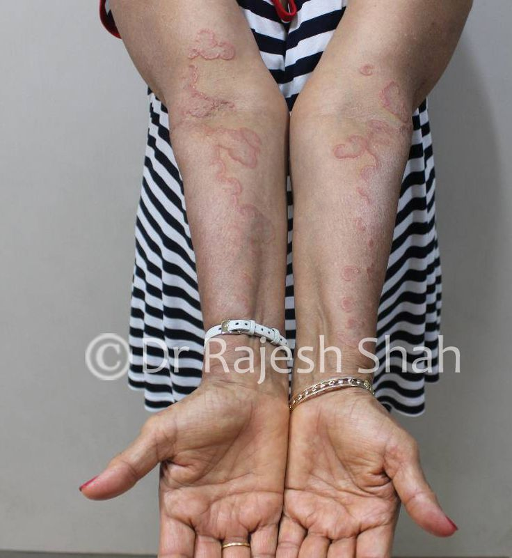 Granuloma Annulare is a rare skin disease, which is long-standing (chronic) where you find skin rash in the form of red bumps arranged in the form of a circle or a ring. Localized, Generalized, Subcutaneous and Perforated are 4 different types of Granuloma Annulare. To know more about its symptoms and treatment visit the link below. http://www.askdrshah.com/granuloma-annulare.aspx #granulomaannulare #granulomaannularetreatment #granulomaannularecure