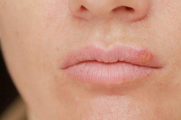 Lip Dermatitis 7 Natural Home Remedies For Lips Eczema Lip
