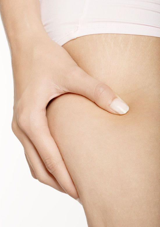 PERMANENT CELLULITE ELIMINATION - INEXPENSIVE CELLULITE TREATMENT THAT WORKS http://vladbosach.weebly.com/1/post/2014/03/permanent-cellulite-elimination-inexpensive-cellulite-treatment-that-works.html
