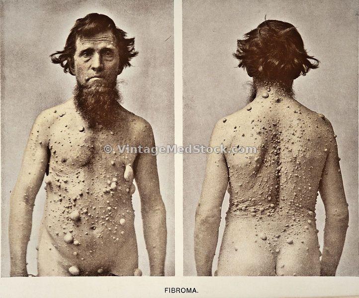 rare skin disease