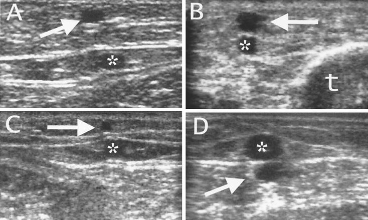 The superficial accessory great saphenous vein (arrows) at the thigh (A) and in the leg (B) can be recognized in its parallel and more superficial course with respect to the Great Saphenous Vein (*); t, tibia. C, The superficial accessory small saphenous vein (arrow) overlies the small saphenous vein (*) by which it is separated by the hyperechoic saphenous fascia. D, The intergemellar vein (arrow) courses deep to the small saphenous vein (*) between the heads of the gastrocnemius.