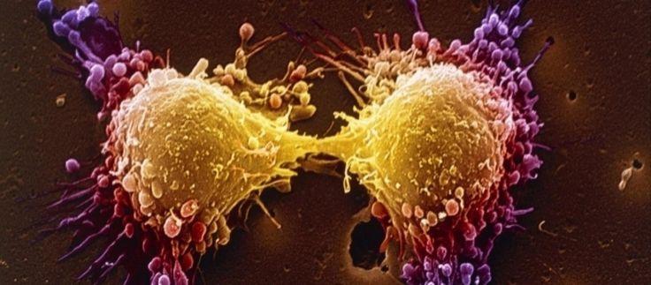 Cánceres ocultos detectados combinando pruebas genéticas y resonancia magnéti…