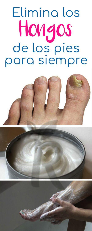 remedios para eliminar los hongos de las uñas de los pies