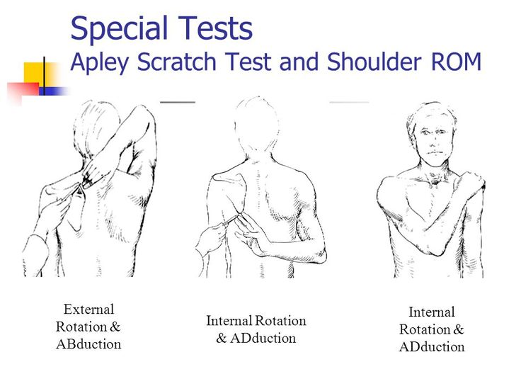 Dislocated Shoulder: Symptoms, Tests, And Treatments