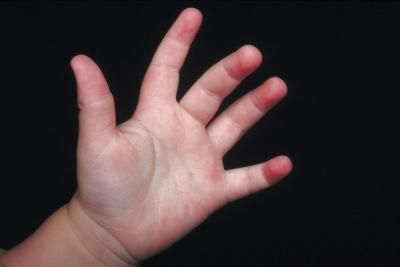 What Are the Causes of a Child's Hands Shaking?