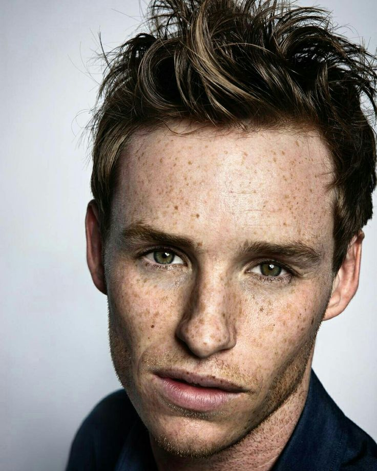 I love his freckles