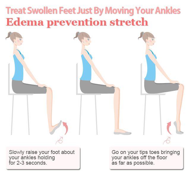 Easy Edema Treatment for Water Retention in Swollen Feet | Slism
