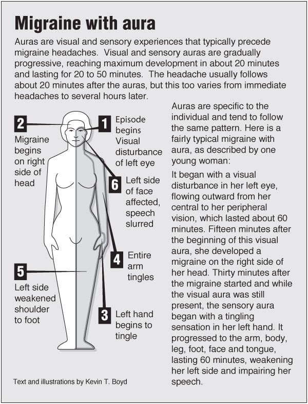 Information graphic about Migraine with aura with links to acupressure for related symptoms