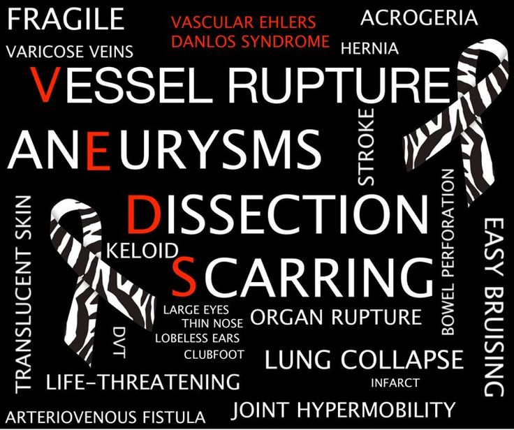 Vascular Ehlers Danlos Syndrome Symptoms  #VEDS #awareness                                                                                                                                                     More