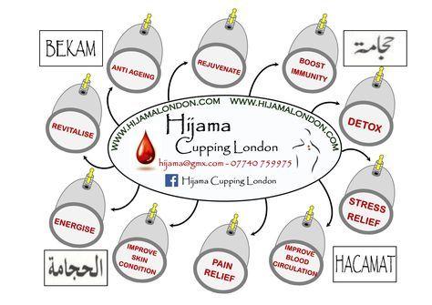 Hijama Benefits Poster