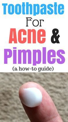 Toothpaste for pimples is a good quick fix to get rid of pimples fast. Toothpaste for acne works too. Here's a guide on how to get rid of pimples with toothpaste it's really useful!