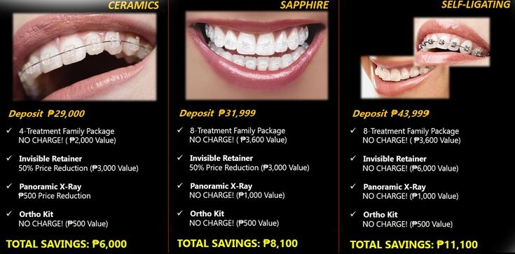 How much do braces cost in the philippines in 2020