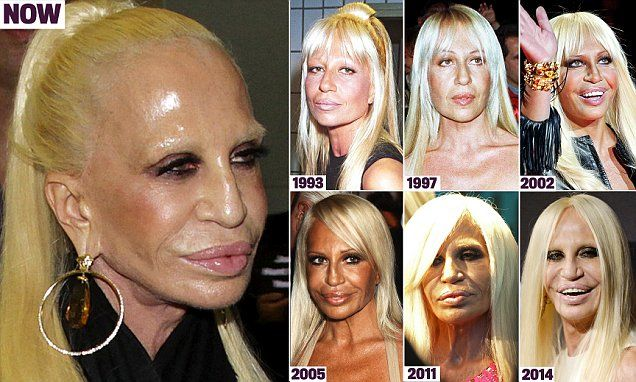 How Donatella Versace transformed herself into a human waxwork with Botox, implants and laser resurfacing
