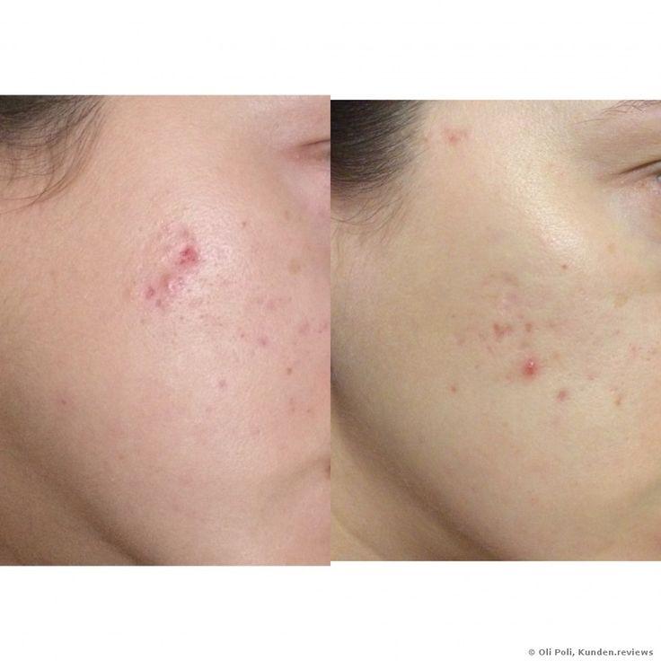 Avène Triacnéal Expert Review: Wie wird man den ständigen Ausschlag und Aknenarben los? Ganz einfach!!! Mit der TriAcneal Emulsion verschwindet die Akne für immer!!! + Bilder