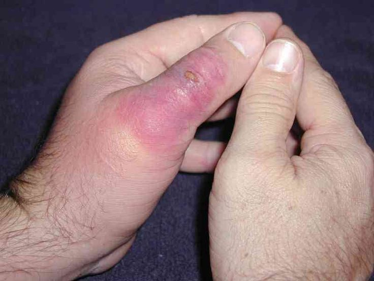 Brown Recluse Spider Bite | Brown Recluse Spider Bite Pictures [p. 2]