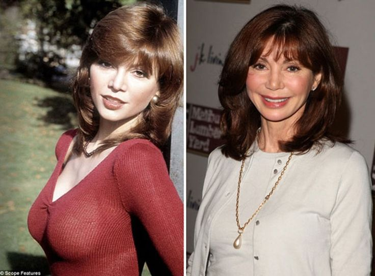 Victoria Principal plastic surgery - She is a 64 years old American author, and actress. She began plastic surgery with facelift procedures