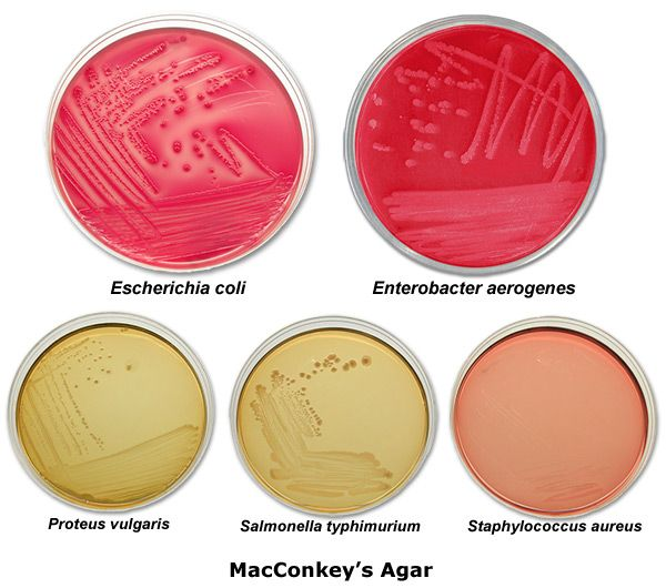 What are the selective and differrential mediums in culture of bacteria ?
