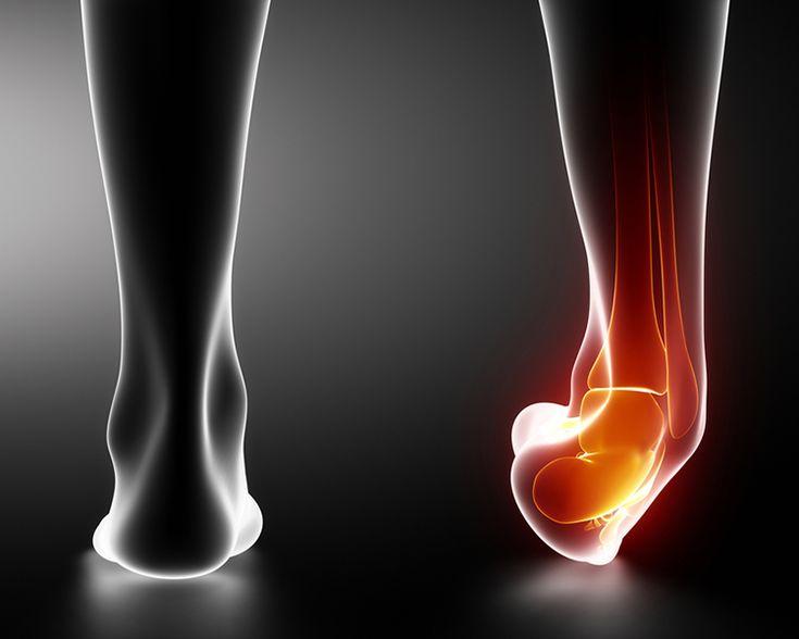 Verletzungen führen häufig nicht nur zu einer Sportpause und zu Schmerzen, sie bilden auch häufig die Grundlage für zukünftige Verletzungen.