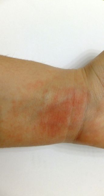 How To Treat Heat Rash, AKA That Very Itchy Red Rash You Only Get In The Summer