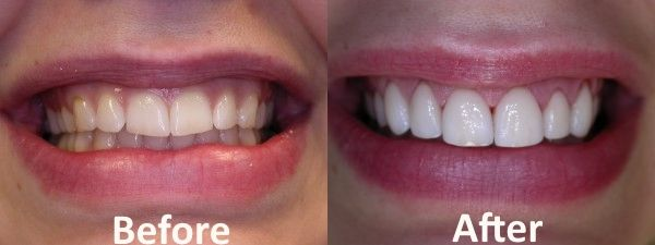 "Desired Smiles: Ontario's Prime Cosmetic Dentistry  At Desired Smiles, we will work based on your smile requirement. We can change your smile from dull to dazzling, bright, younger looking and beautiful.  Visit now https://desiredsmiles.com or Call us at 905-637-5463  ""Have Questions? Ask Us."""