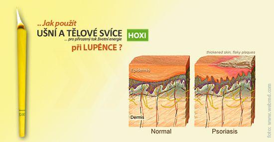 Na různé projevy lupénky je třeba provést aplikaci několikrát. Nikdy nepřikládáme svíce HOXI přímo do hluboce popraskané kůže, svíčka by neměl přijít do kontaktu s krvácejícím místem nebo místem, kde je zaschnutá krev nebo strup.....