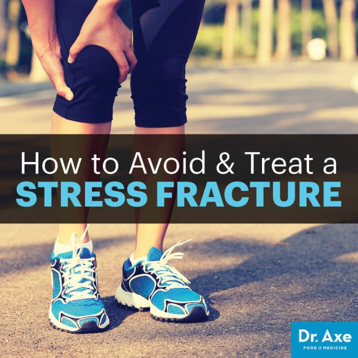 Stress fracture - Dr. Axe http://www.draxe.com #health #holistic #natural