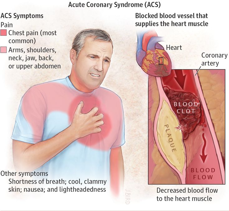 Acute Coronary Syndrome. JAMA. 2015;314(18):1990. doi:10.1001/jama.2015.12743.