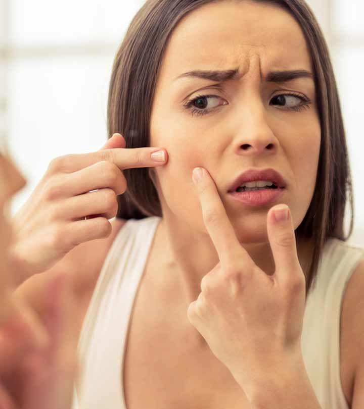 Pickel / Akne-Behandlung und 20 Hausmittel – wie man Pickel zu Hause entfernt