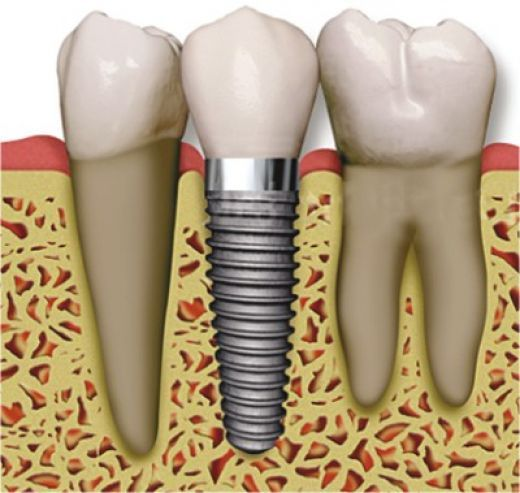 The main aim of modern dentistry is to safe the damage tooth. Dr.Garg provides Dental Implant treatment using advance technology to preserve the decay teeth.
