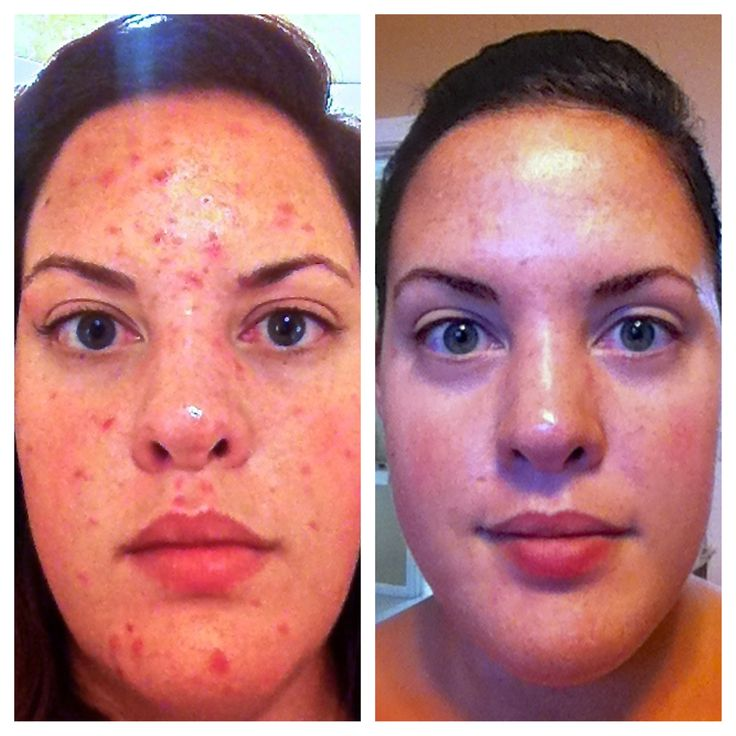 Rodan and Fields Unblemish results. These pictures are taken 2 weeks apart, with the same lighting and are un-retouched. I am a Rodan and Fields Independent consultant, these are my personal before and after photos. Www.Britneyharper.Myrandf.Com www.facebook.com/rodanfieldsteamharper
