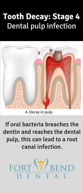 Lovely Endodontic therapy is required to treat a root canal infection This means the removal of the diseased dental pulp the filling of the pulp chamber with an
