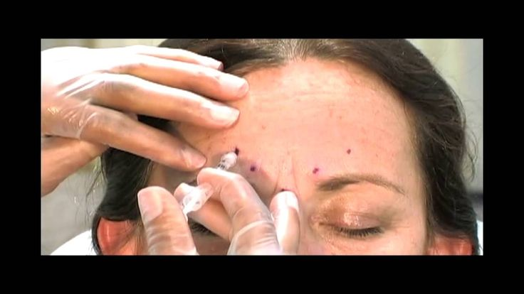 Botox Training - Learn Botox Injection Techniques from an Experienced Cosmetic Surgeon.   Watch a sample of The Complete Guide To BOTOX® Injections on YouTube. This video received a Silver Davey Award and was featured in Skin Inc. Magazine.  Get the full length online video and DVD (run time: 1 Hr. 55 Mins.) from Aesthetic VideoSource at http://www.videoshelf.com/video/dvd/S16D_The_Complete_Guide_to_BOTOX_Injections.html  DVDs are also available on Amazon at http://amzn.to/1o3GWvs