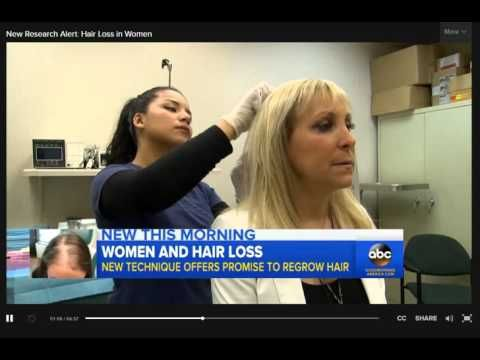 New Research Alert Hair Loss in Women Video   ABC News -  How To Stop Hair Loss And Regrow It The Natural Way! CLICK HERE! #hair #hairloss #hairlosswomen #hairtreatment Recently aired research on Good Morning America about the use of PRP and Eclipse to Reverse Hair Loss in Women  - #HairLoss
