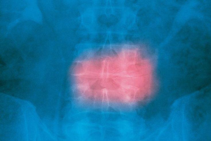 Ejercicios para reducir la compresión de la columna vertebral. La compresión de la columna vertebral es causa potencial de dolor de espalda. Se produce cuando los discos intervertebrales se hacen más pequeños. Estos discos son almohadillas de cartílago y  líquido que amortiguan la columna ...
