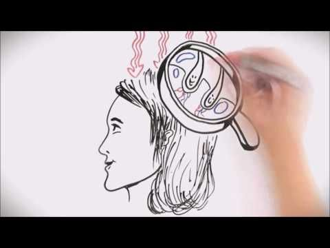 BeanStalk Deep Red Laser Helmet Hair Growth Results in Days Not Weeks http://youtu.be/R6HqbRwEm_g