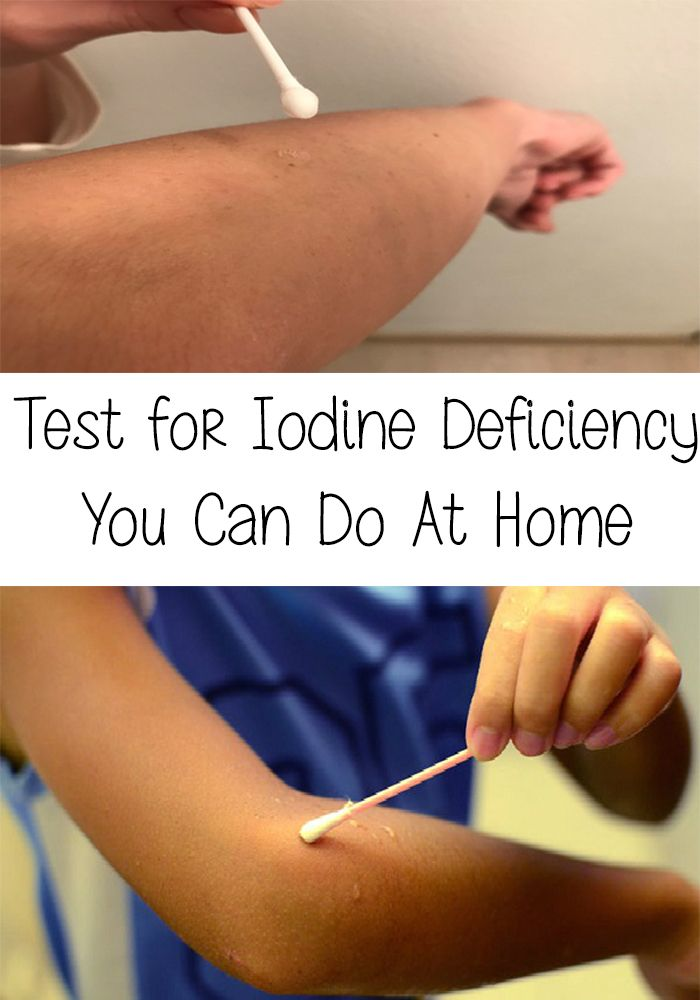 odine deficiency is part of the top 3 most common deficits, along with magnesium and vitamin D. Here is a Test for Iodine Deficiency You Can Do At Home!