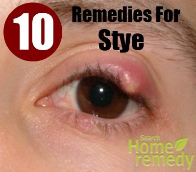 Natural Home Remedies For Infection Near The Eye
