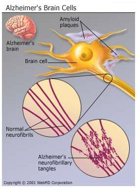 Alzheimers - what causes it?  Brain Cells
