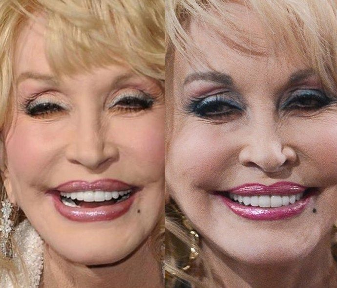 Dolly Parton Have Breast Augmentation-1066